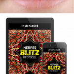 Herpes Blitz Protocol Review: Time to End your Embarrassment